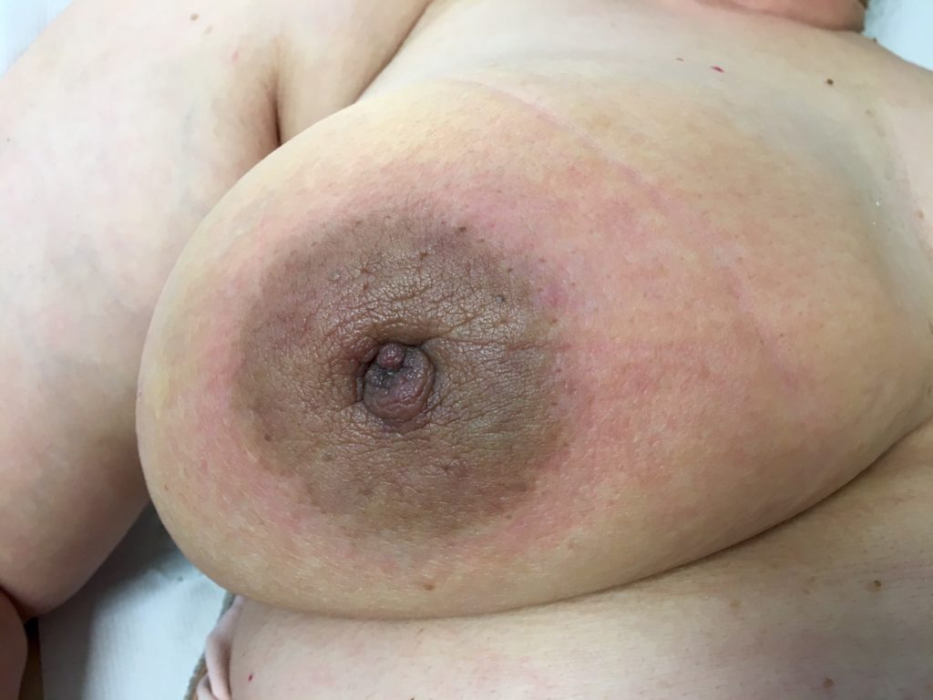 This is an example of inflammatory breast cancer. The redness and swelling of skin (oedema) are typical